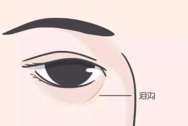 泪沟怎么消除?天然淡化泪沟的小技巧分享_WWW.XUNWANGBA.COM
