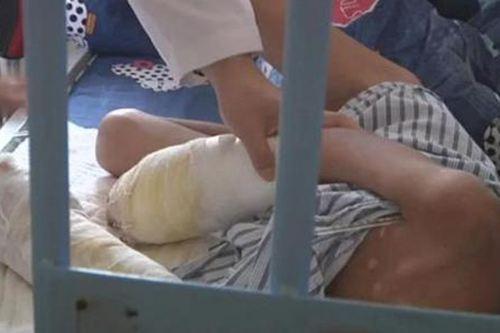 疑遭生父烫伤男童切除部分手指 7岁男童被父亲烫致双手感染坏死_WWW.XUNWANGBA.COM