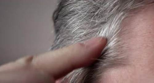 年轻人长白头发能拔吗 年轻人长白头发能恢复吗 年轻人长白头发能再变黑吗_WWW.XUNWANGBA.COM